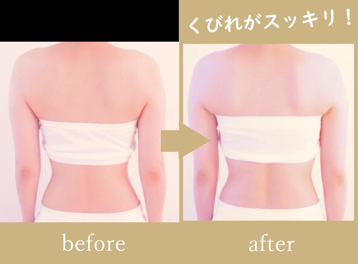 秦野市ヘッドスパ専門アロマサロンsuiの肩こり、首こりが気になる女性の施術前と施術後